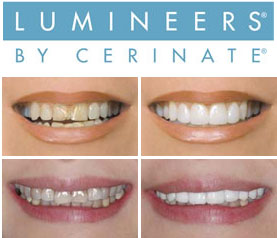 Lumineers veneers for chipped, cracked, discoloured teeth available at Trinity House Dental Practice in Yeovil